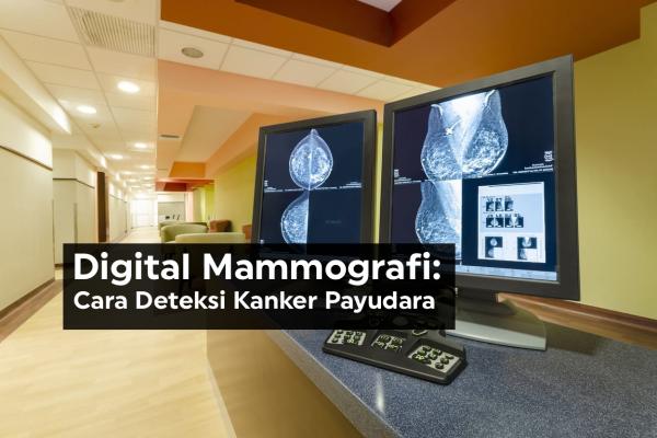 Digital Mammografi: Cara Deteksi Kanker Payudara